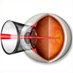 prophylaxis peripheral laser photocoagulation of retina