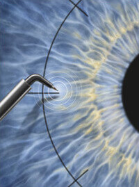 Keratoplasty and cornea pathology treatment