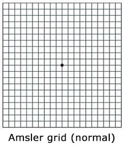 Amsler grid (normal)
