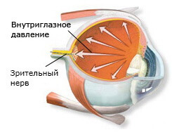 Сataract and glaucoma