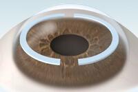 Stromal Ring