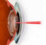 Treatment of secondary cataract