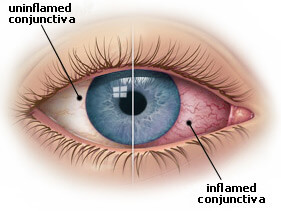 Conjunctivitis - Treatment - NHS Choices